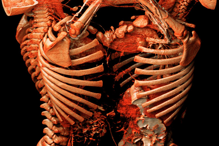 Rib cage in Anatomage table view